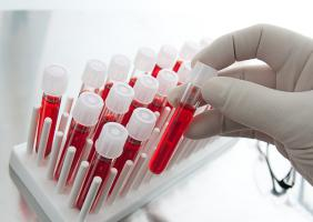 Лабораторные анализы на гепатит с